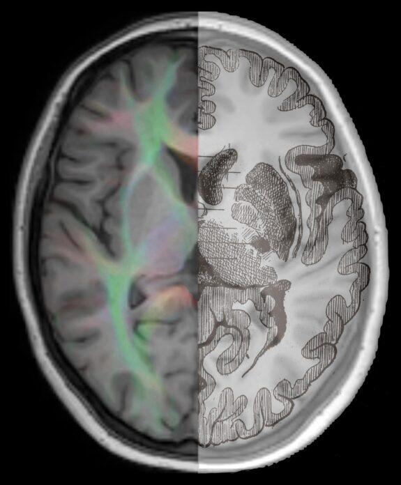 Merged Brain